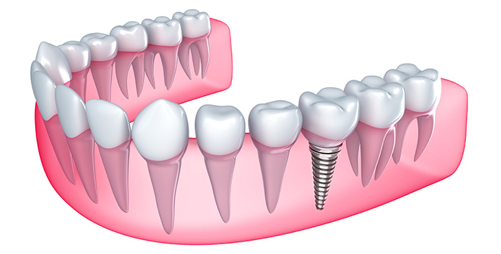 Implantes-Dental